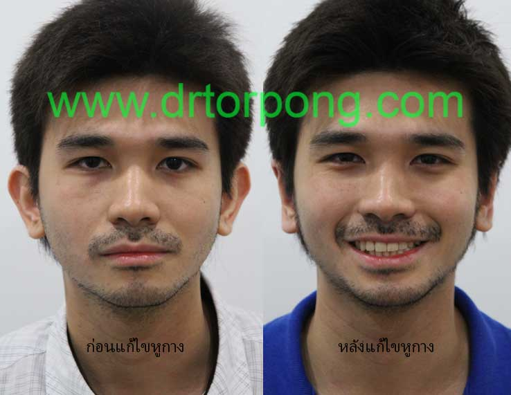 http://www.drtorpong.com/2012/images/copymark3/batear58.jpg