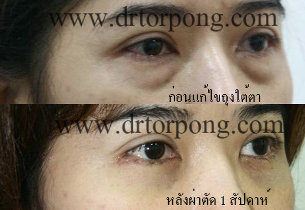 http://www.drtorpong.com/2012/images/copymark3/lowerblepharoplasty50.jpg