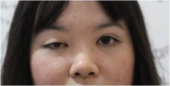 ก่อนผ่าตัดแก้ไขกล้ามเนื้อตาอ่อนแรง