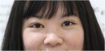 หลังผ่าตัดแก้ไขกล้ามเนื้อตาอ่อนแรง