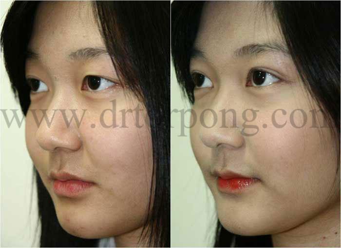 http://www.drtorpong.com/images/copymark/korea-blepharoplasty11.jpg
