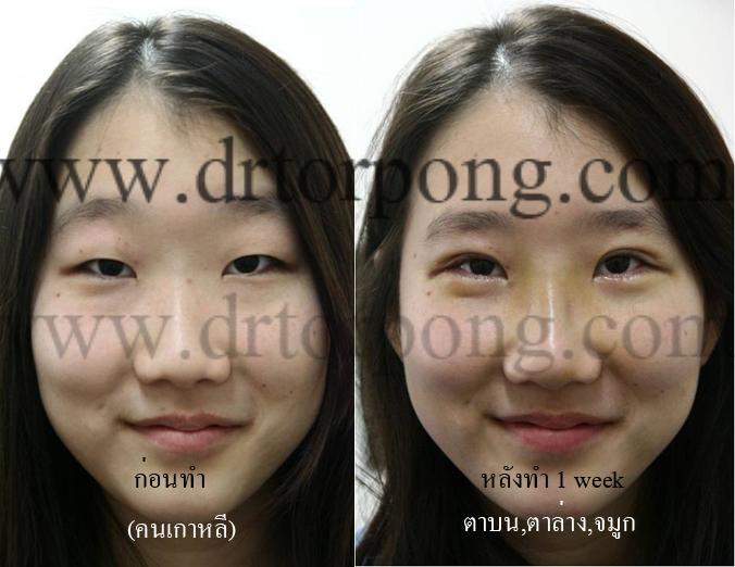http://www.drtorpong.com/images/copymark2/korea-blepharoplasty15.jpg
